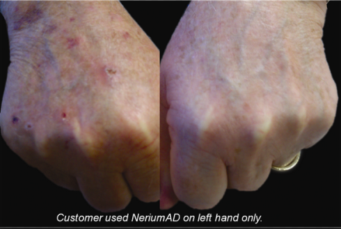 back of the hands , skin, discoloratin and wrinkles