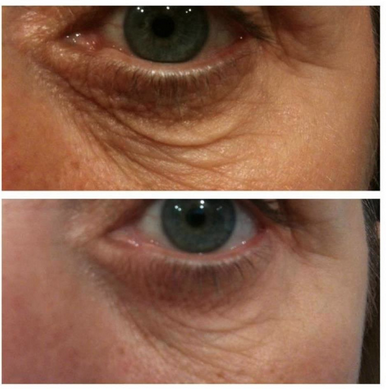 eyes crows feet wrinkles and bags under the eyes nerium