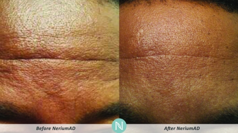 An at-home before-and-after photo from a Nerium customer.