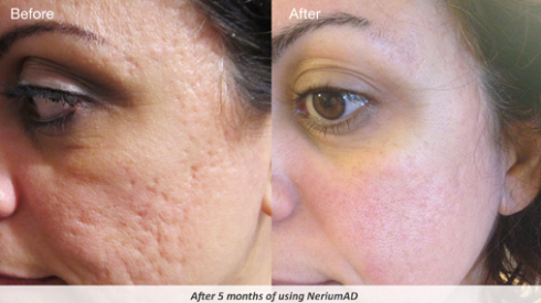 nerium works on cystic acne and Atrophic scars