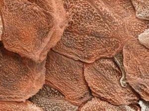 human skin under an electron microscope