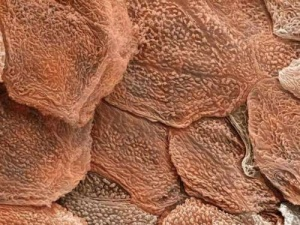 human skin under an electron microscope